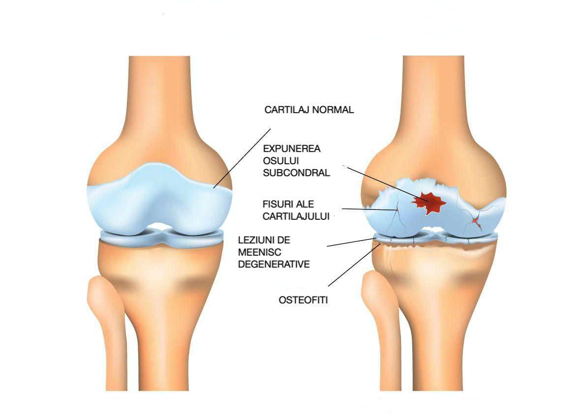 artroza deformantă a articulației genunchiului drept