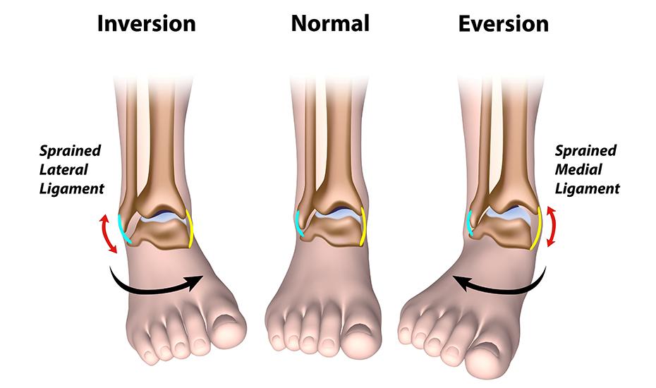 gradul de artroză a articulației gleznei