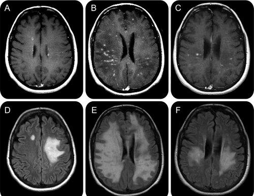 inflamația articulară în scleroza multiplă Tratament de entorsă musculară la șold