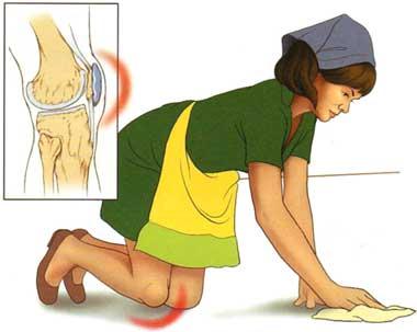 lichid în sacul suprapatelar al tratamentului articulației genunchiului