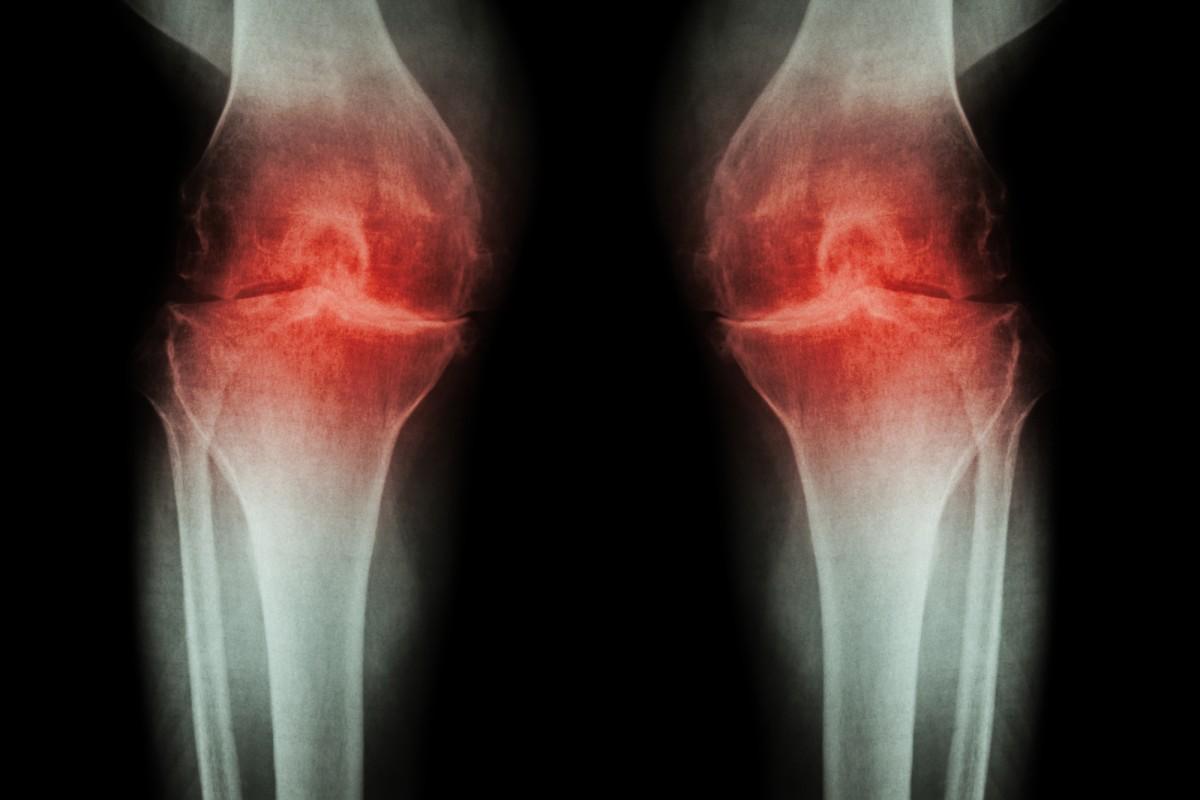 inflamație articulară pe tratamentul brațului
