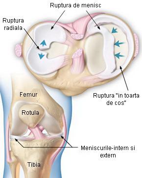 meniscus leziune a diagnosticului articulației genunchiului