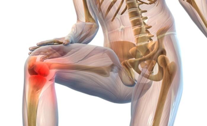 cum să tratezi artroza călcâiului artroza inițială a cotului