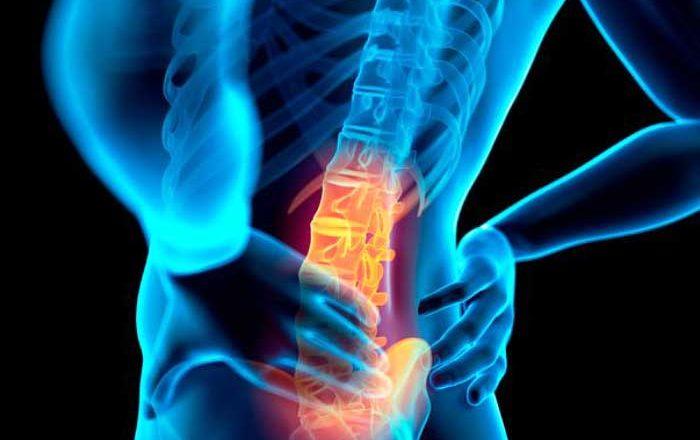 osteofite dureri articulare cum să tratezi genunchii dureți