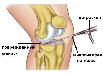Preparate condoprotectoare pentru evaluarea prețurilor la articulații ungerea unguentului articulației genunchiului