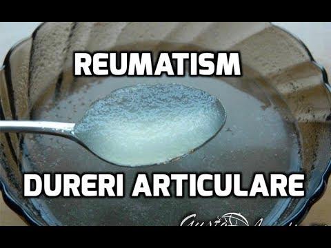 prescriptie pentru gelatina durerii articulare unguent pentru articulații egiptene