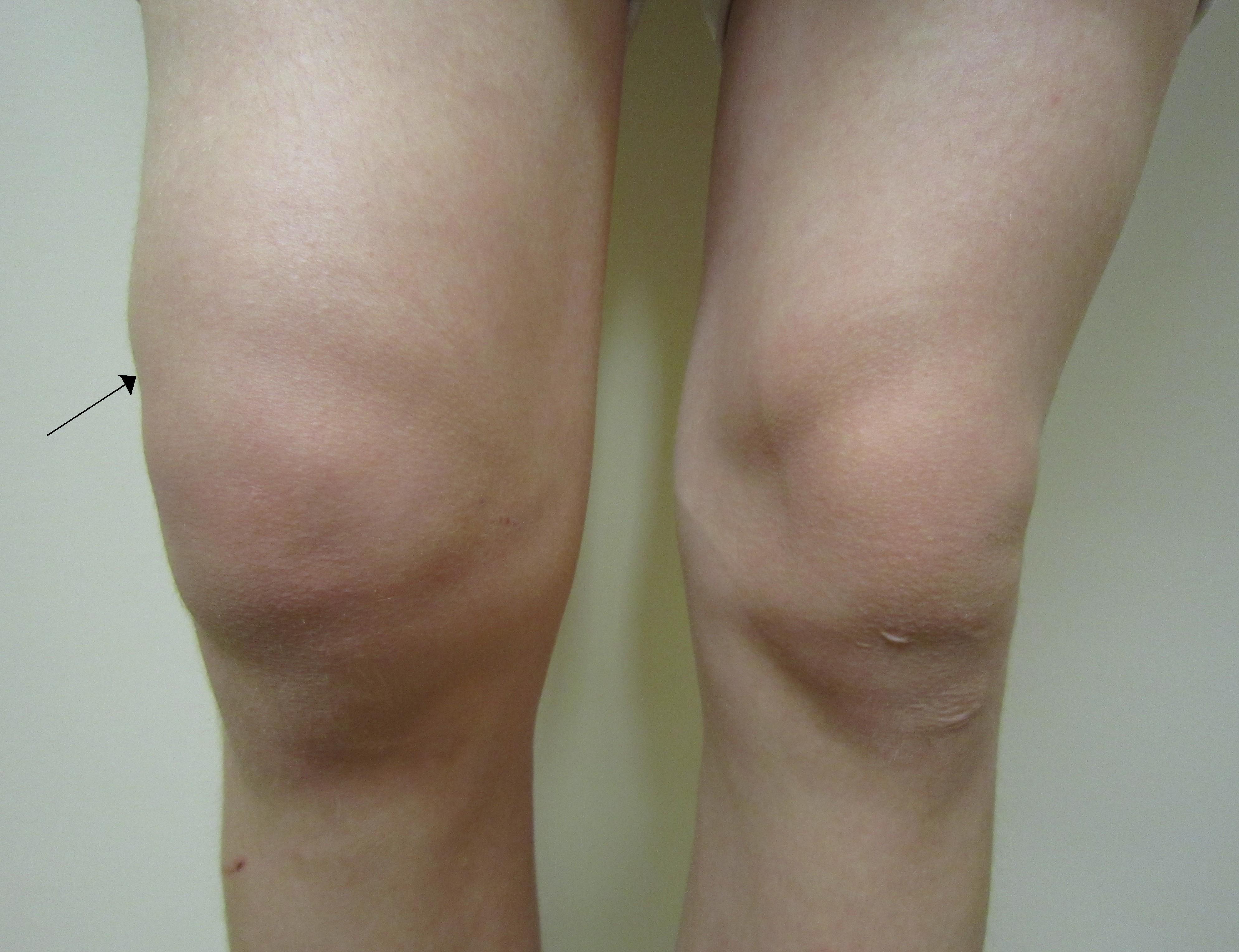 proces inflamator în tratamentul articulațiilor genunchiului