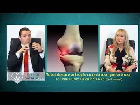 recenzii privind tratamentul artrozei articulațiilor șoldului debutul bolii doare articulațiile
