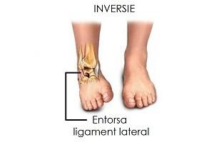 provoacă boli la genunchi