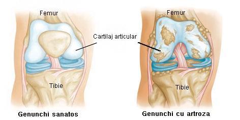 dureri musculare la antebraț kai tratează articulația umărului
