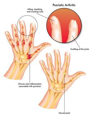 simptomele și tratamentul bolii articulare autoimune