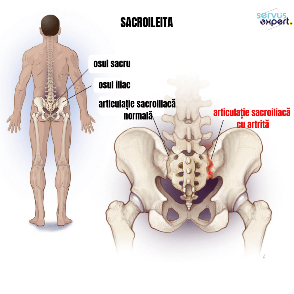 tratament articular sacroiliac artrita durerii articulare reumatice