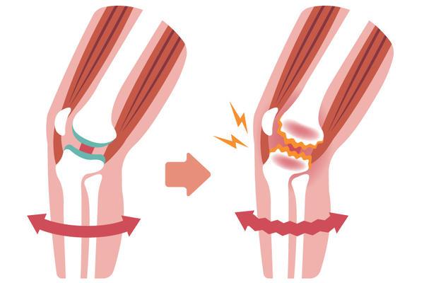 osteochondroza vertebrei cervicale ce unguente unguent pentru tratamentul articulațiilor la genunchi