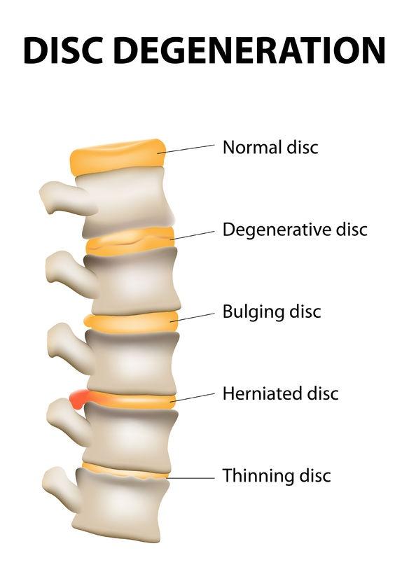 Stenoza de canal lombar – simptome, diagnostic și tratament