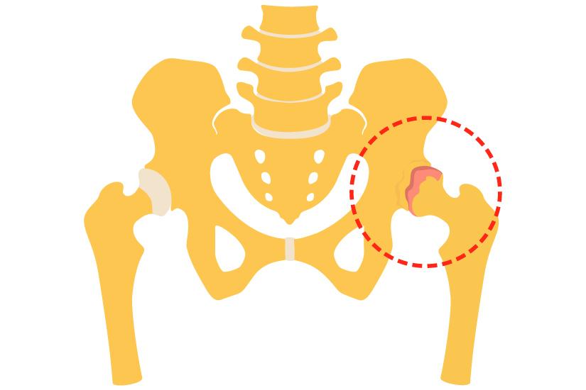 Tratamentul articulației șoldului de gradul 1