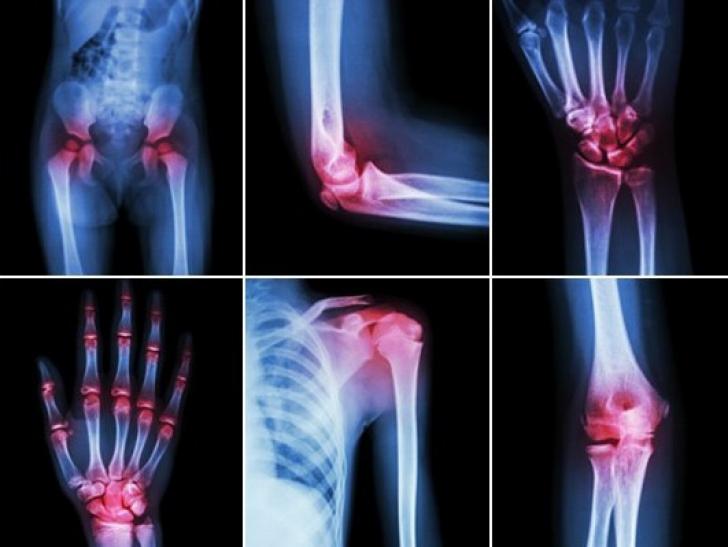 de la alergiile articulațiilor rănite