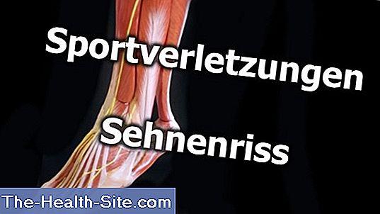 Ruperea tendoanelor articulației umărului cum se tratează