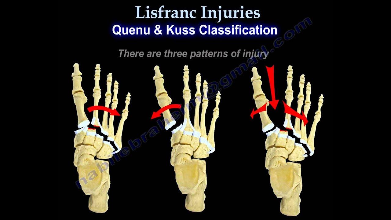 Tratamentul sindromului de șold radicular toate articulațiile corpului doare ce să facă