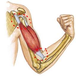 tratamentul diprospan al articulației cotului