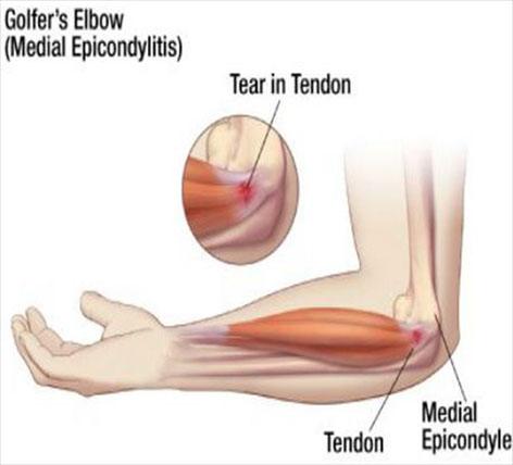 meniscus accidentare cronologie de genunchi