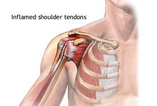 tratamentul inflamației tendoanelor articulației umărului