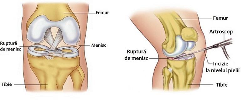 tratamentul meniscului genunchiului