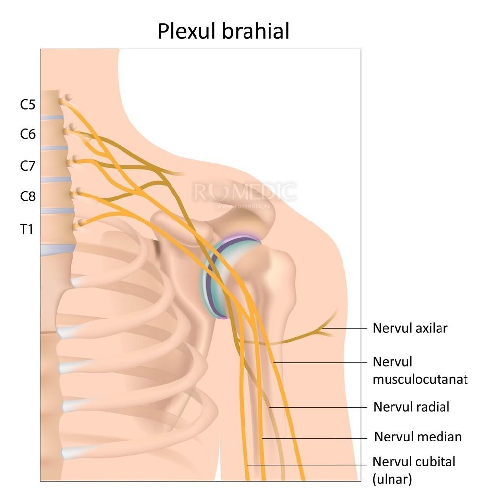 tratamentul simptomelor nevritei umărului pentru articulațiile bolnave