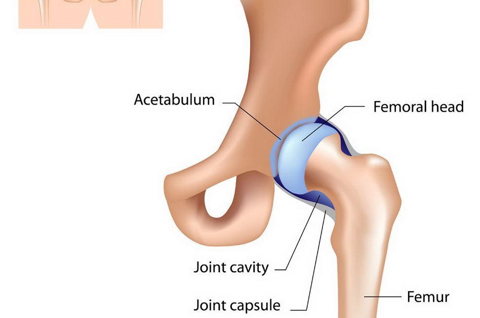 artroza șoldului la tineri