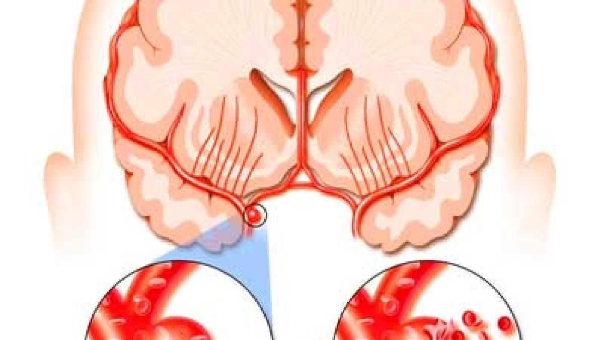 tratamentul articulațiilor umărului după accident vascular cerebral