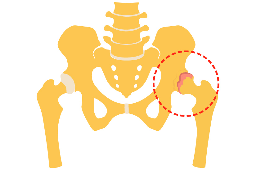 dureri articulare diprospan