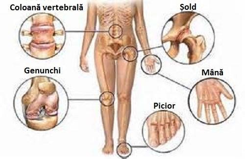 inflamația articulațiilor tratamentului coloanei vertebrale