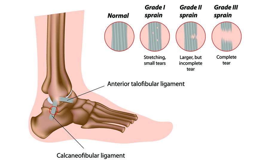 refacerea articulației gleznei după ruperea ligamentelor artrita nodulara a mainilor