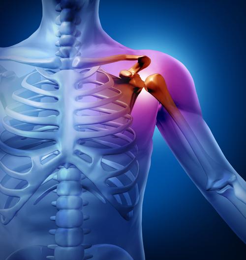 Mersul nordic și artroza articulației șoldului artroza a 3-a etapă a articulației genunchiului. tratament