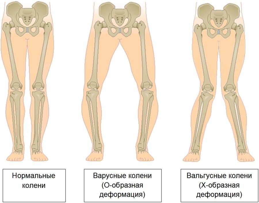 semne ale artrozei deformante a articulației umărului