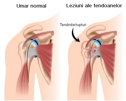 dureri de umăr care sunt simptomele