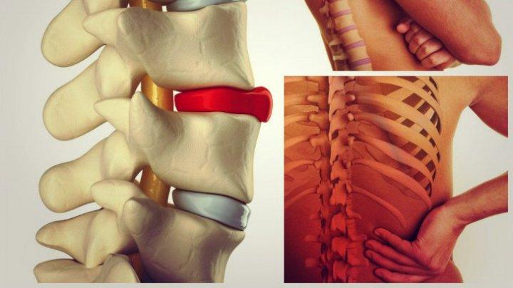 tratament brusc al articulațiilor lombare artroza posttraumatică a tratamentului gleznei