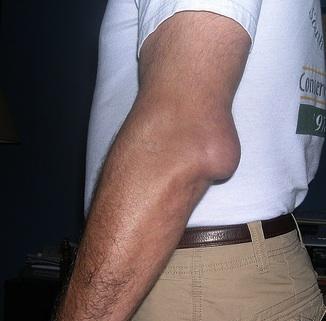 Bursita - simptome, tratament   Centrul Medical Superfit
