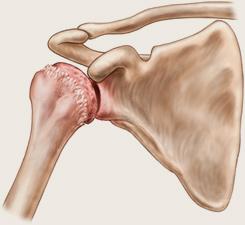 Artroza deformantă a articulației umărului stâng - Artroză grade a articulației umărului drept