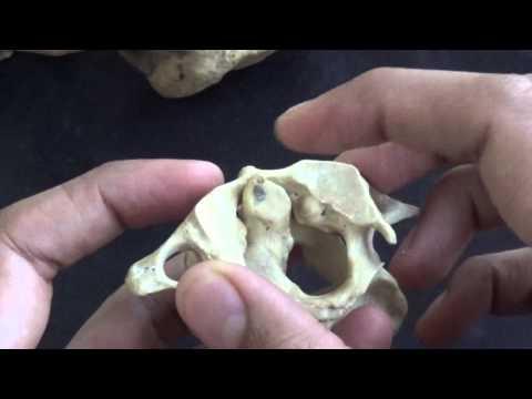 artroza articulației atlanto axiale