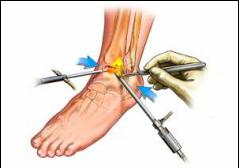artroza tratamentului simptomelor gleznei tratament articular de medicină ortomoleculară