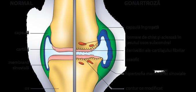 articulațiile doare decât unguentele tratamentul comun al uleiului de brad