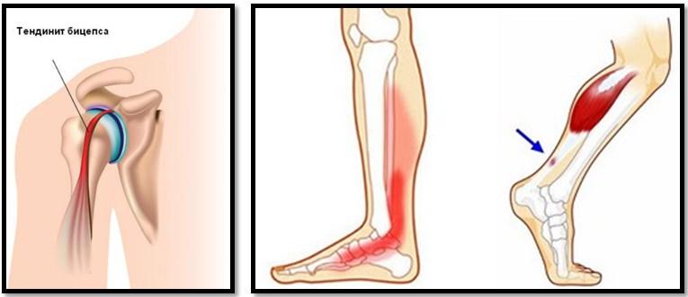 este posibil să încălziți articulațiile cu artroza piciorului cum să elimini durerea artrozei articulației șoldului