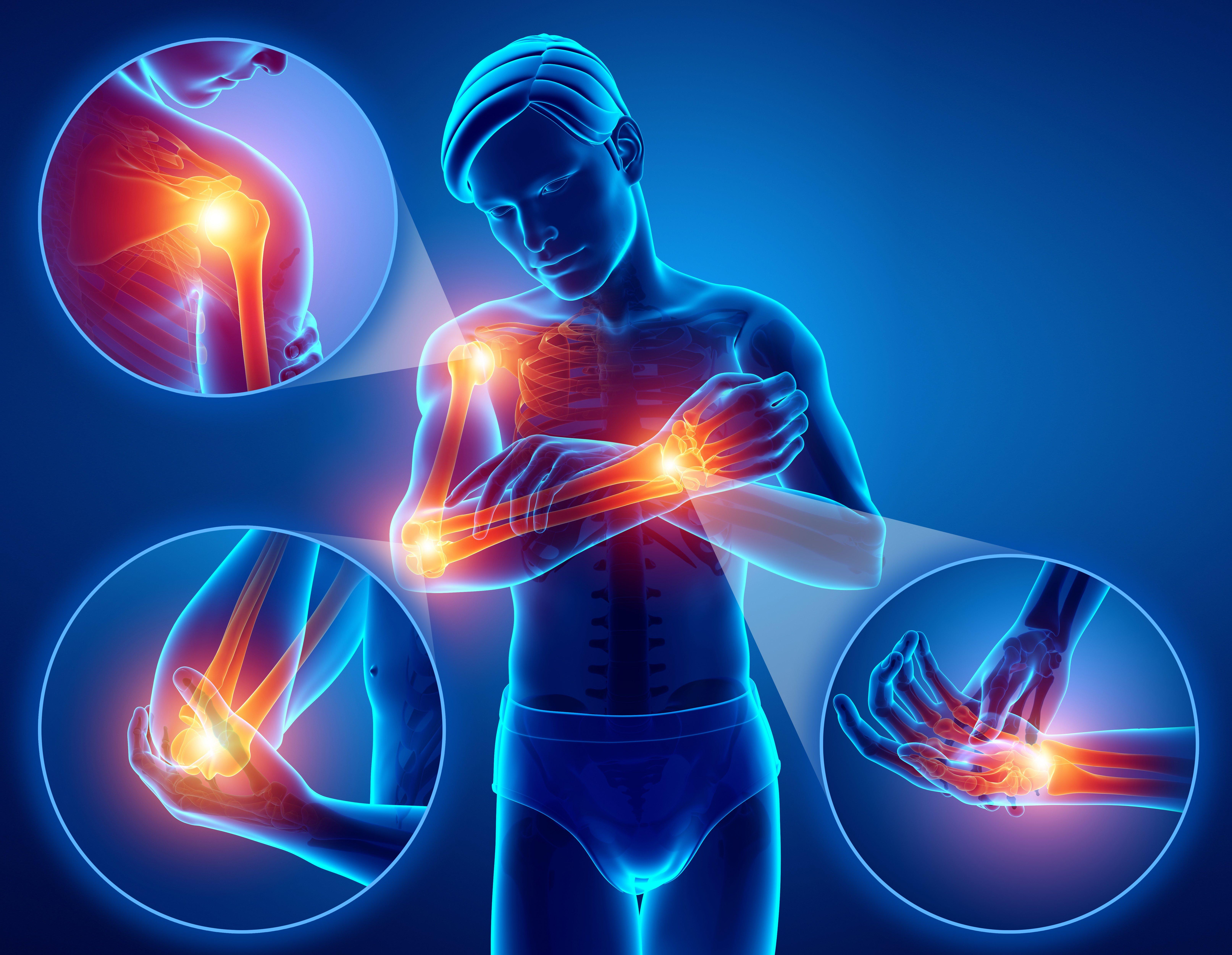 Articulațiile rănite din mucoase. Rănite după febră articulațiile