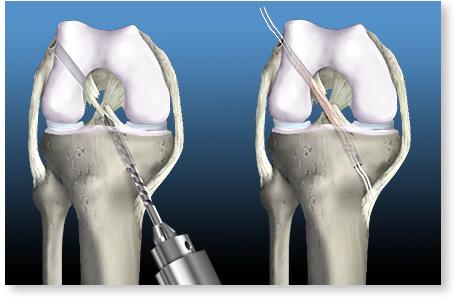 cum se tratează ligamentele rupte pe articulația genunchiului modificări degenerative în tratamentul articulației genunchiului