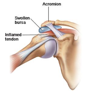 bursita simptomelor și tratamentului articulației umărului
