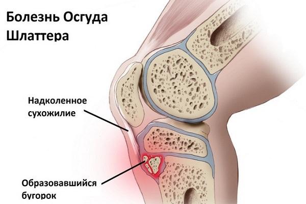 Avansarea teraflex în artroza genunchiului