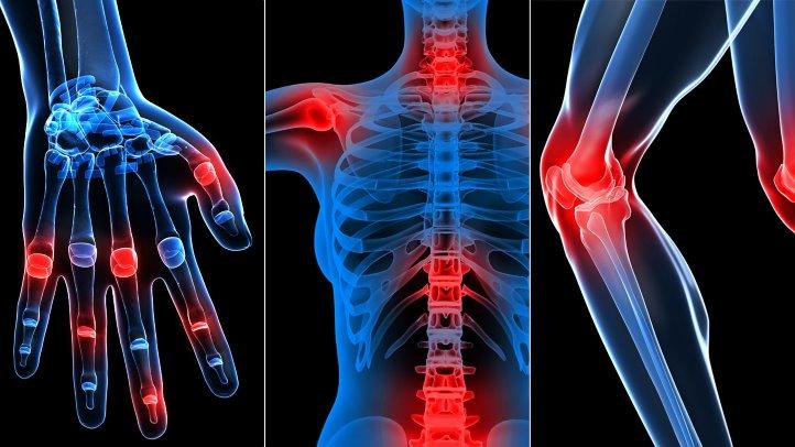 Durerea Articulatiilor - Tipuri, Cauze si Remedii Toate articulațiile doare asta