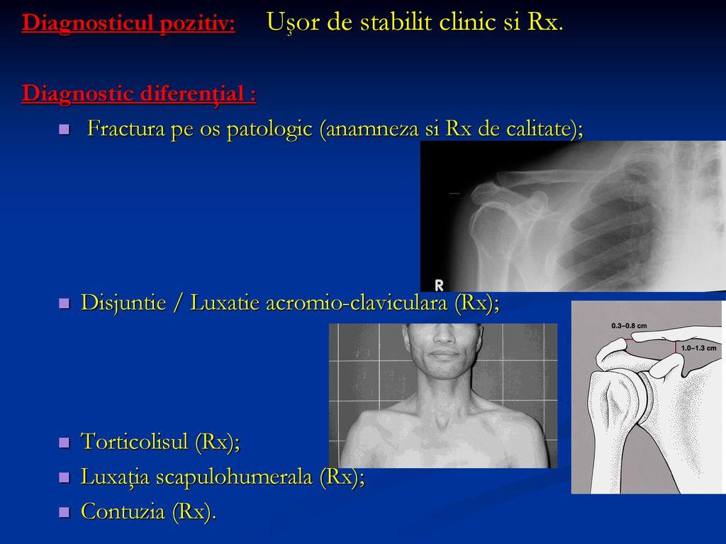 Fractura de Umar - Ortopedie ArcaLife