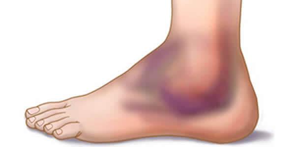 Company Info, Osteoartroza tratamentului articulației gleznei drepte