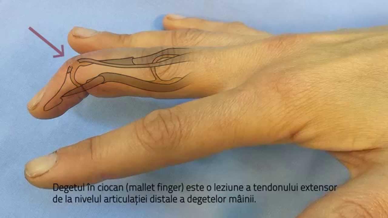 Cum să alinați inflamația în articulația unui deget - Articulațiile cotului doare decât unguentele
